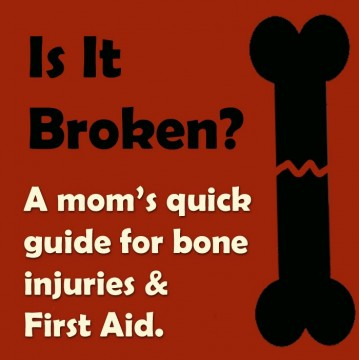Here's a few ways to tell if a bone is broken.  None are for SURE -- but it just might save you a copay. :)