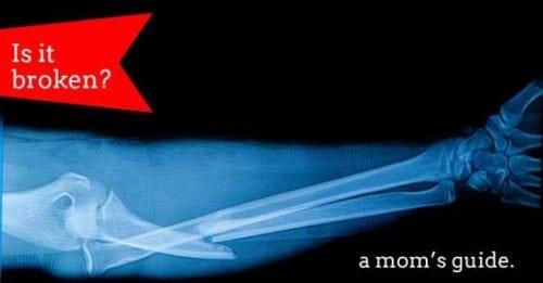 broken bones symptoms | is it broken | moms guide | how to tell