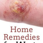 Essential Oils Warts: Natural Home remedy